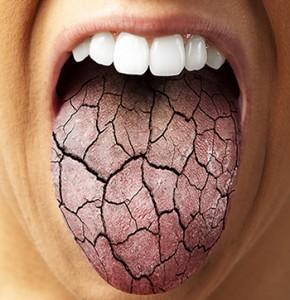 oorzaken droge mond