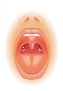stukje keel