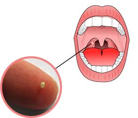 tonsilstones