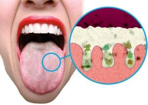 witte aanslag tong